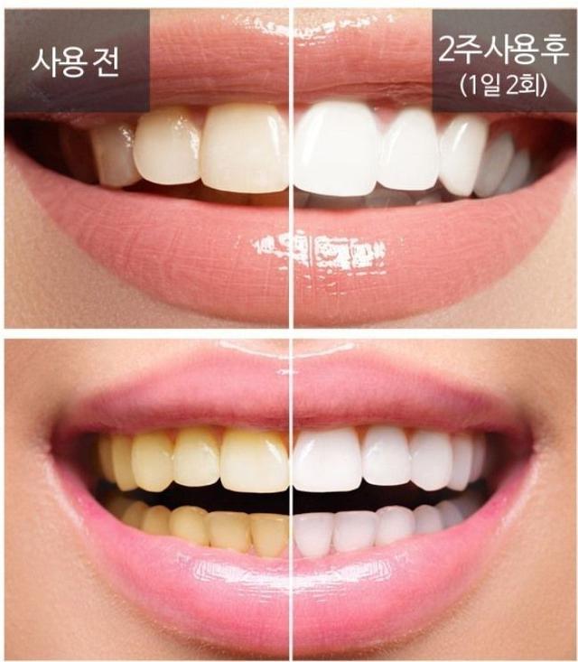 韓國 有感牙齒速白精華 3.5g