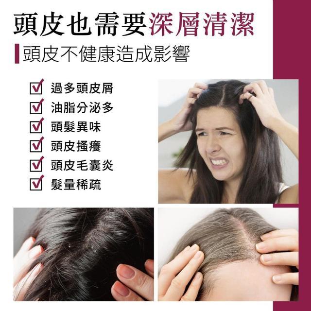 (預購)(8)頭皮深層潔淨去角質霜(共五入)