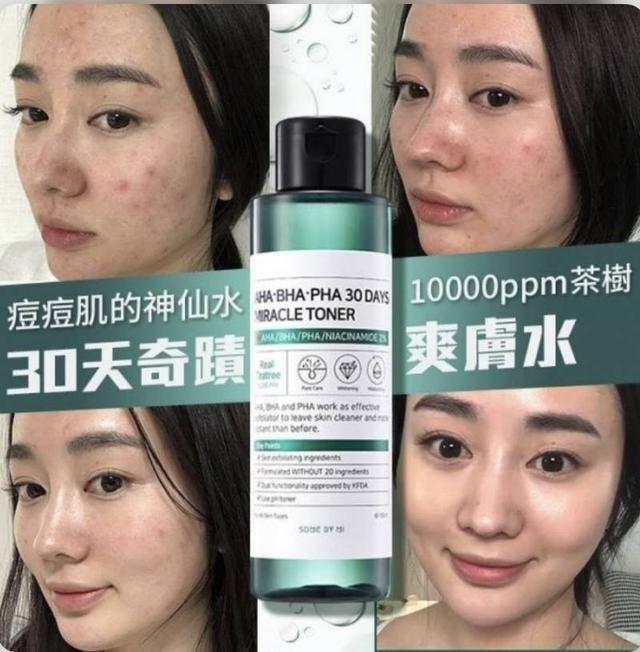 預購~韓國 SOME BY MI 30天奇蹟爽膚水150ML